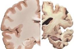 an alzheimer's brain slice