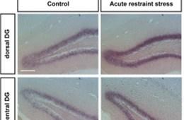 hippocampal slices