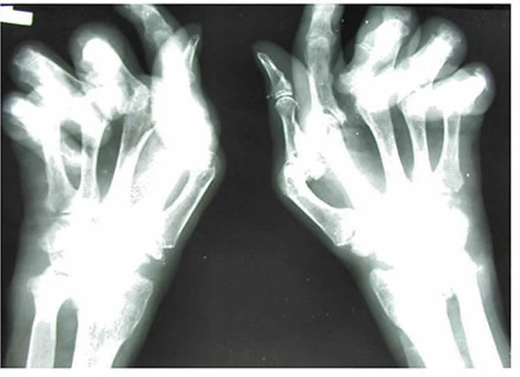 xray of a hand of someone with ra