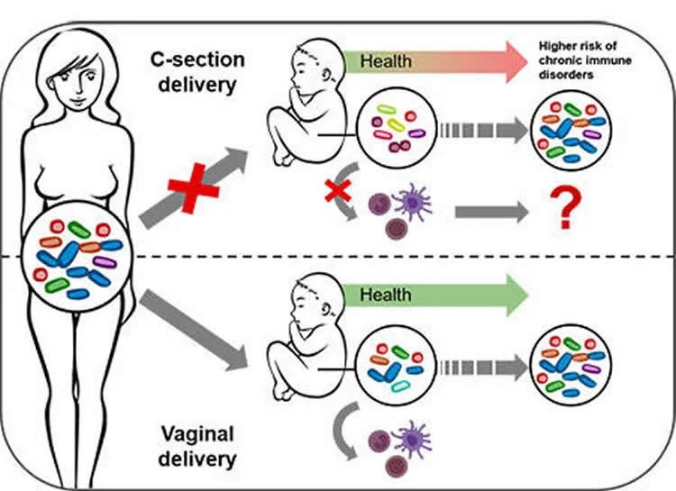 Altered Microbiome Post Cesarean Section Impacts Baby's