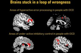 brain scans of ocd patients