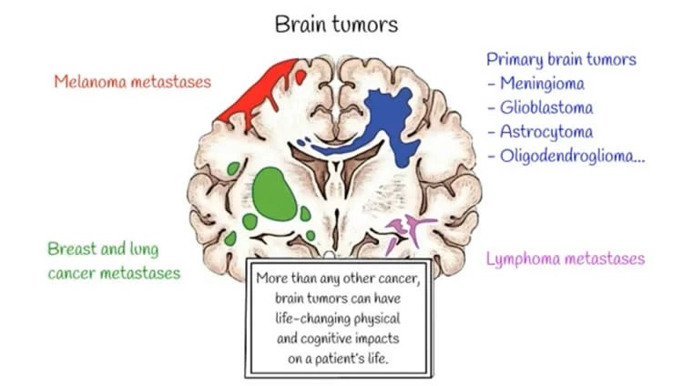 How Does Solid Stress From Brain Tumors Cause Neuron Loss and