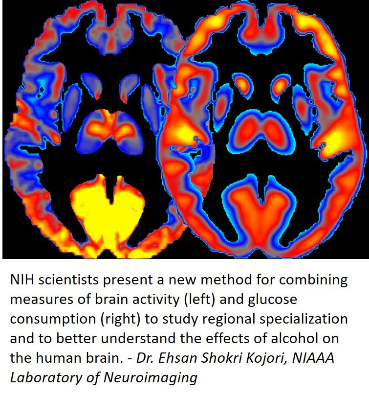 Two brightly colored brain images are shown side by side.