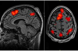 a brain scan highlighting the parietal cortex