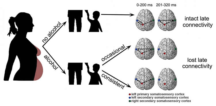 This is a diagram of a pregnant woman and shows the brain scans with the deficient networks