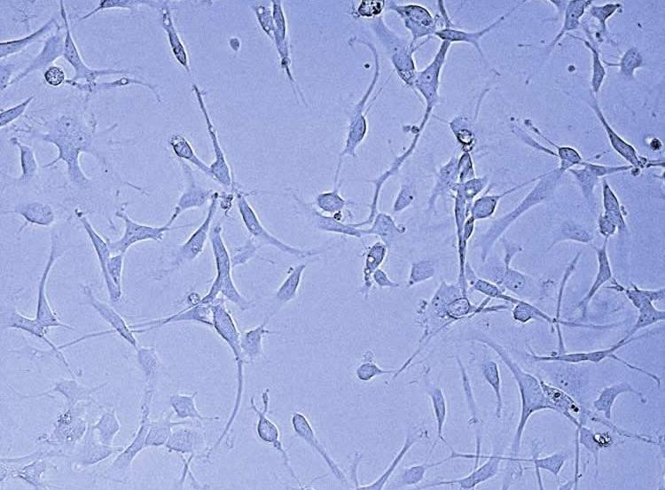 This shows glioblastoma stem cells