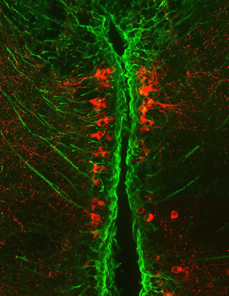 This image shows dopaminergic neurons