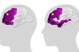 This shows a brain with the frontal lobes highlighted