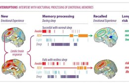 This shows the brain activity during insomnia