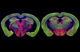 This shows brain slices from a mouse