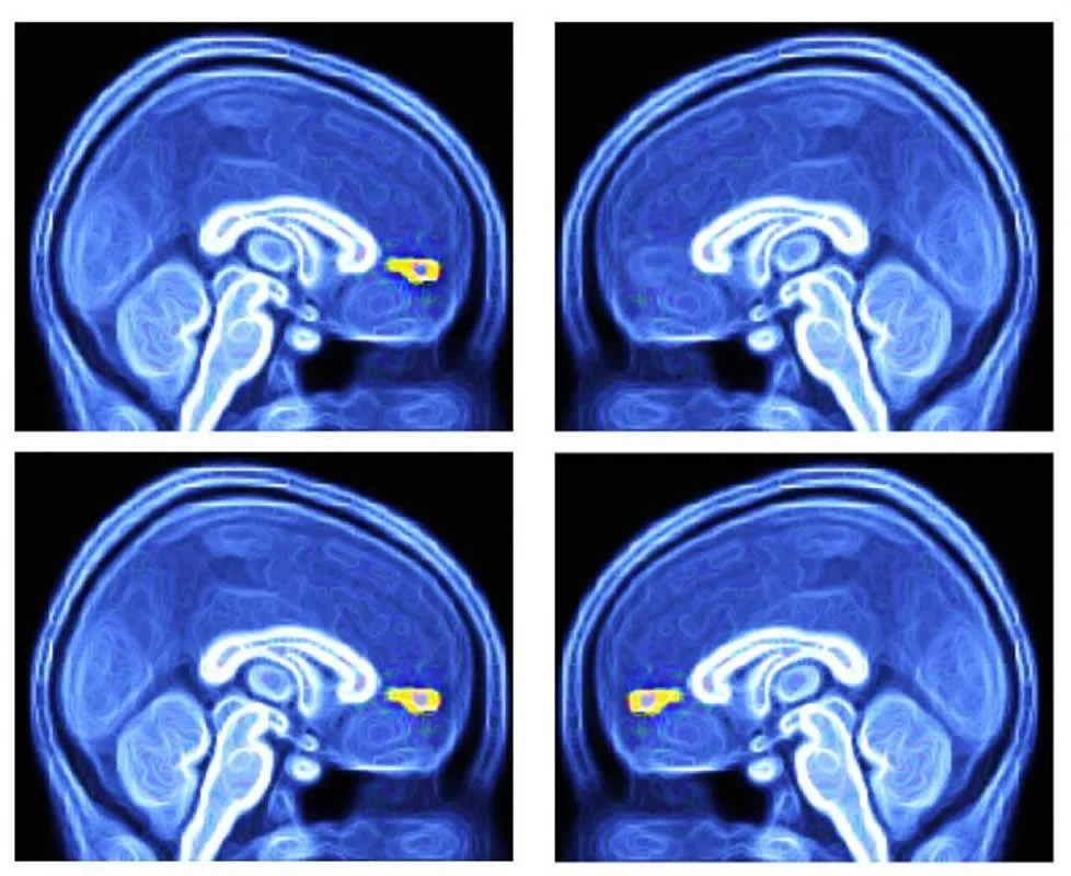 Neuroscientists Reverse Some Autism >> Scientists Succeed In Testing Potential Brain Based Method