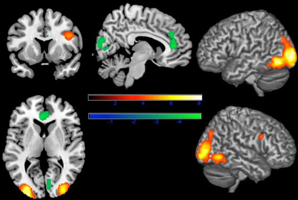 This shows brain scans with the lack of anterior cingulate cortex activity