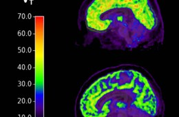 This shows brain scans of people with PTSD