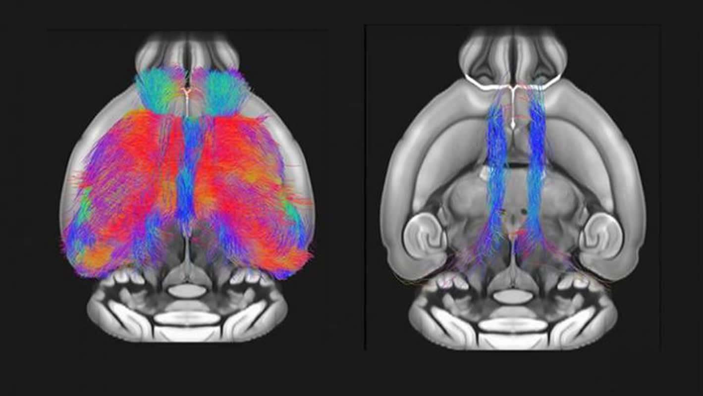 Study Pinpoints Autism Linked Protein >> Autism Gene Linked To Brain And Behavior Deficits In Mice
