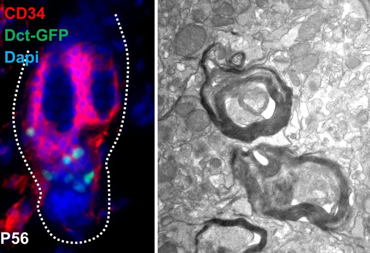 This shows the myelin sheath