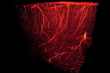 This shows blood vessels