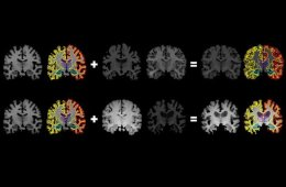 This shows MRI brain scans