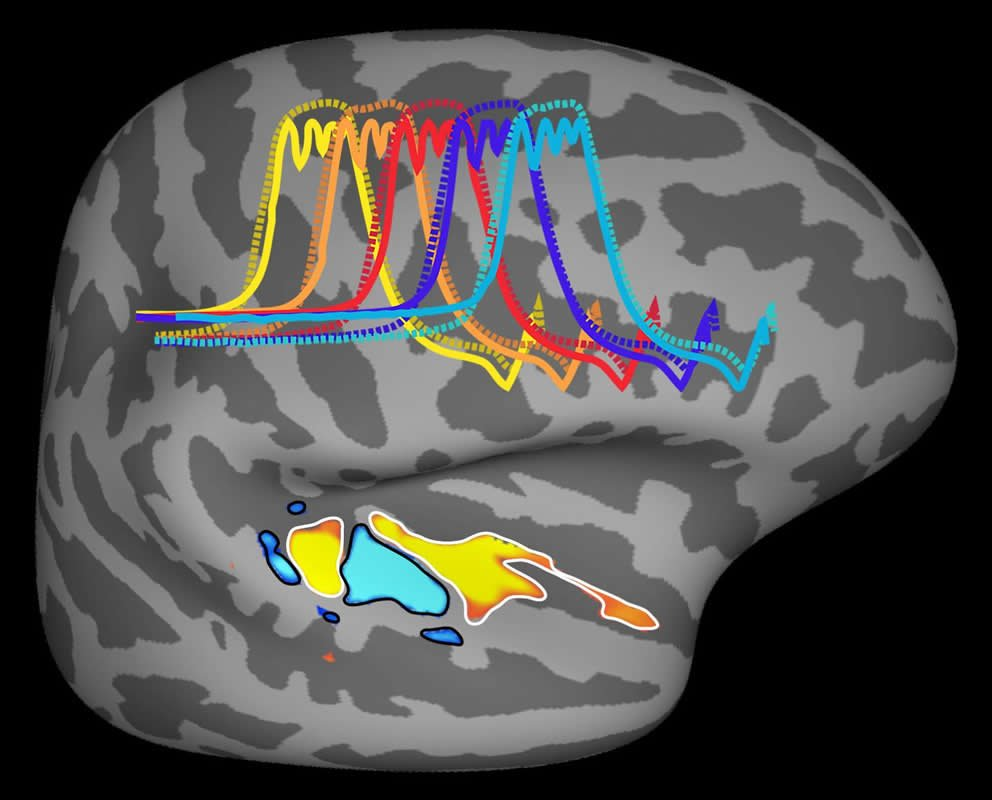 The auditory cortex is highlighted in this brain scan