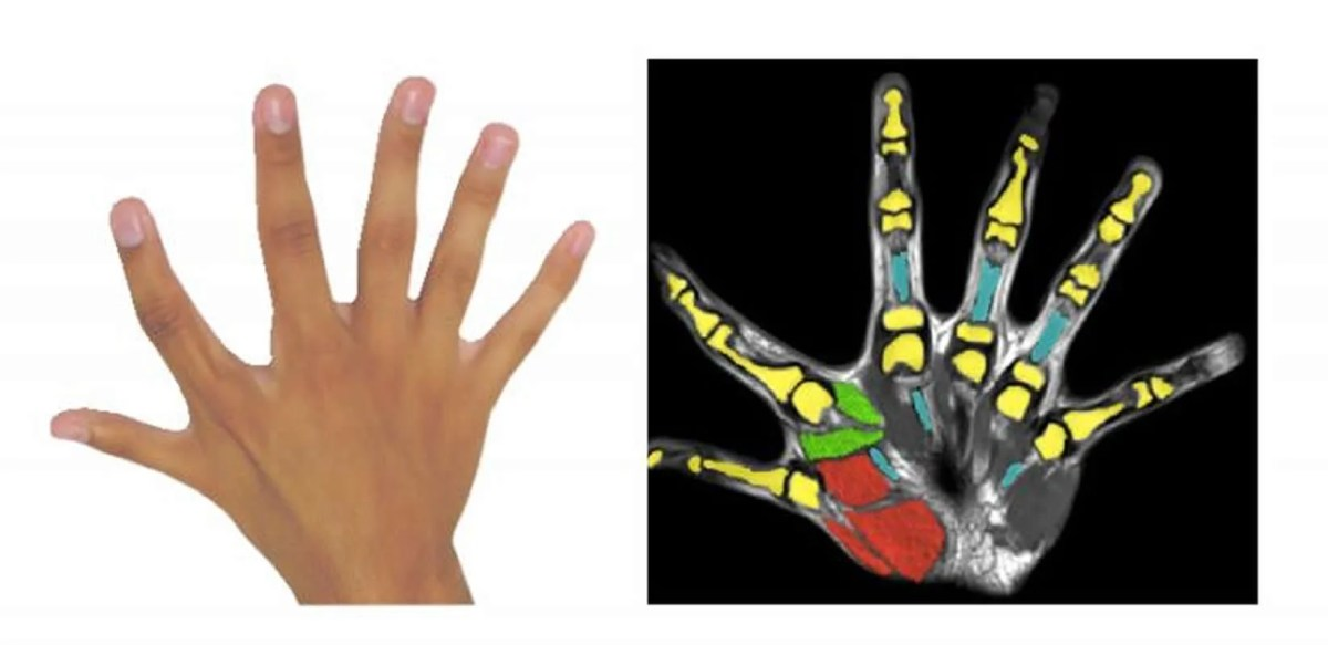 This shows a hand with 6 fingers