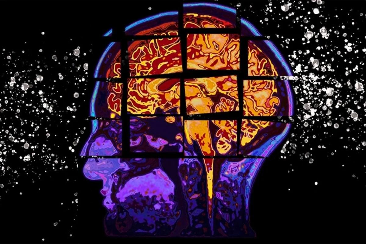 This shows a broken brain