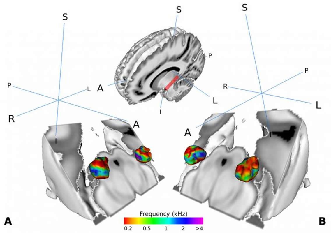mgb speech recognition neurosciencnerws