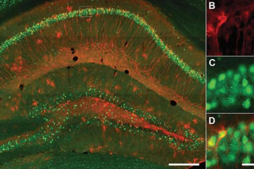 This shows a stained hippocampus