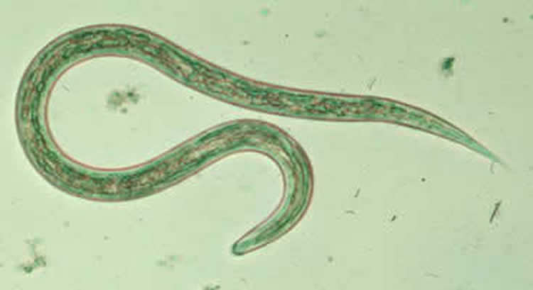 Hookworm infection may cause cognitive impairment earlier