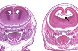 This shows fetal brain scans