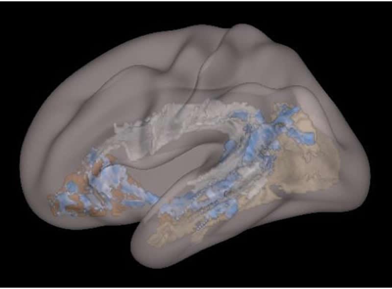 Esto muestra un escáner cerebral del estudio.