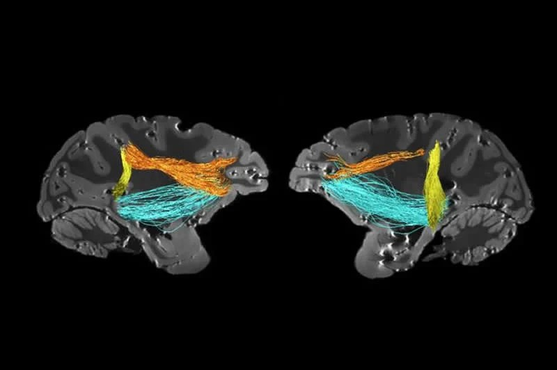 This shows the location of the PITd in the brain