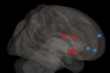This shows the mPFC and striatum highligted on a brain scan