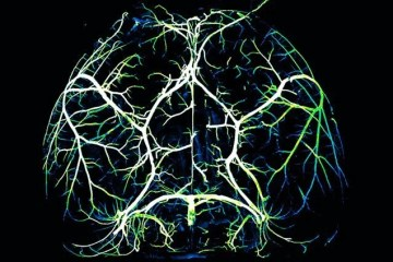 This shows arteries in a mouse brain