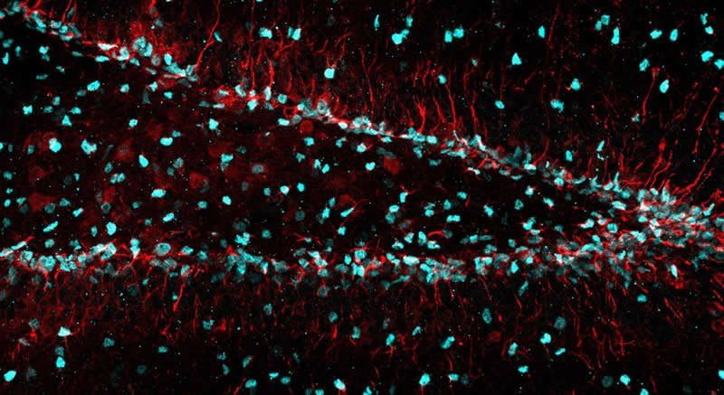 This shows hippocampal neurons