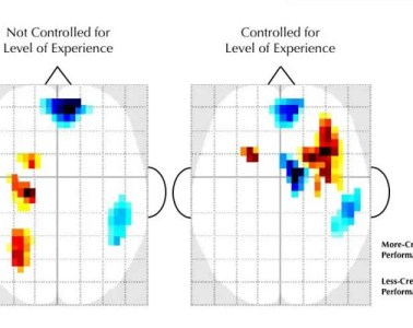 This shows EEG printouts from the study