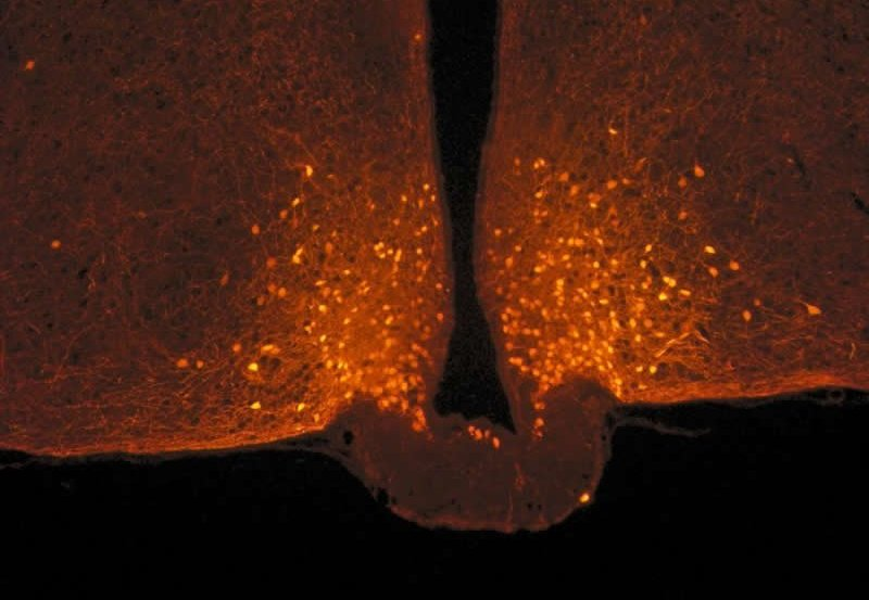 This shows POMC neurons