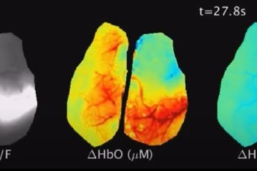 This shows stills from the video of the glioma blood flow