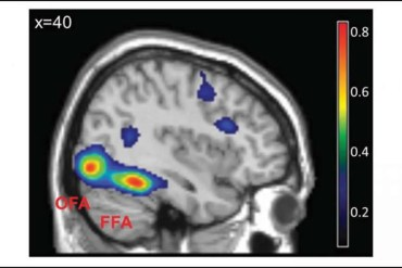 This shows the FFA on a brain scan