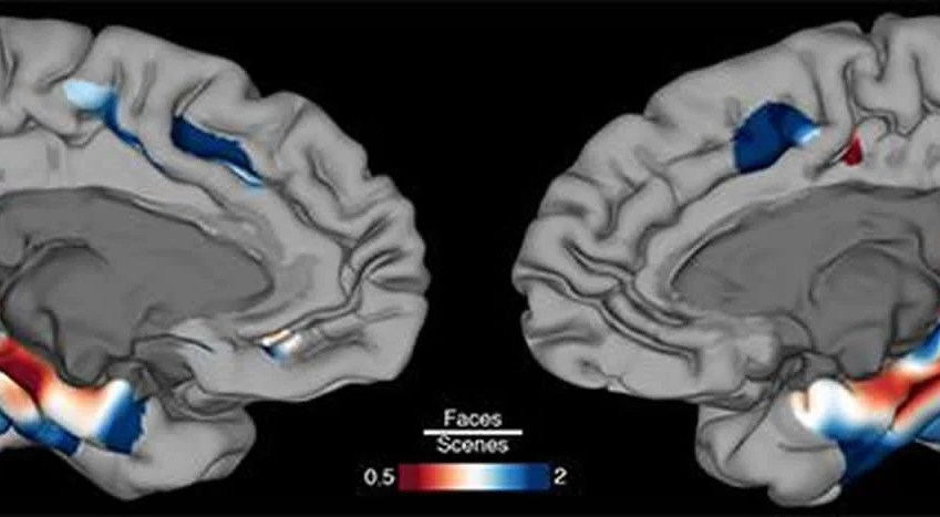 This shows the MPC and MTL in the brain