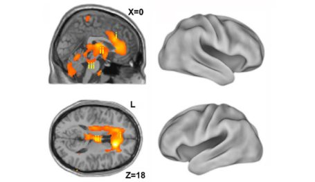 Brain scans are shown of 4 brain images with highlighted areas in two of them. The caption explains it well.