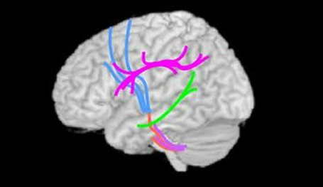 A brain is shown with different pathways highlighted.