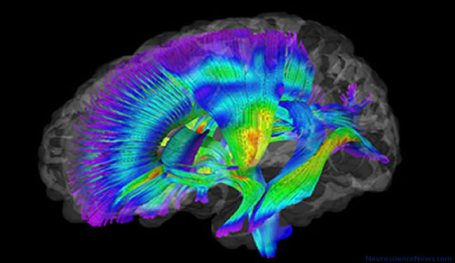 DTI brain scan is shown. A brain with tracts highlighted is seen.