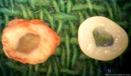 A natural rat IVD and a bioengineered IVD are shown in the picture.