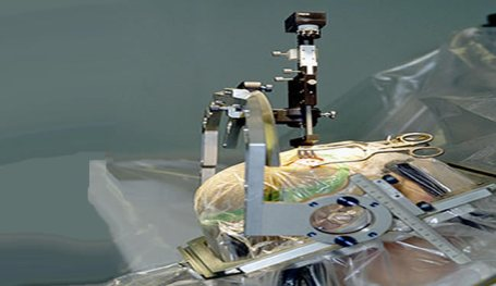 A deep brain stimulation electrode is inserted during a Parkinson's disease patient surgery.
