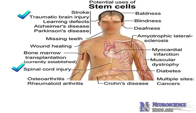 Image showing potential uses of stem cell research with traumatic brain injuries checked.