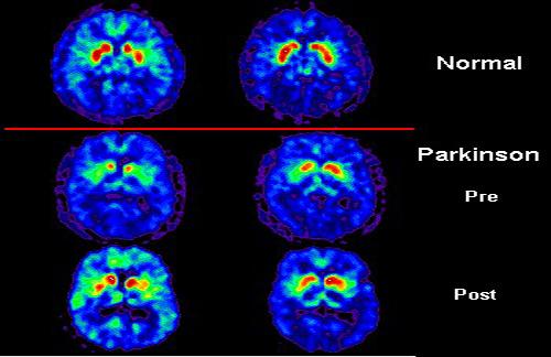Polyamine Protein New Molecular Pathway Underlying Parkinson's Disease