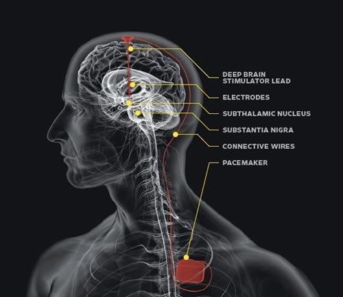 Parkinson's Disease - Neurosurgery