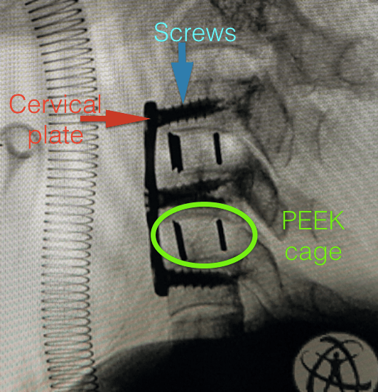 Anterior cervical discectomy and plating