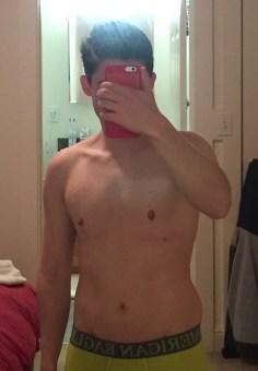 4 years genderqueer top surgery