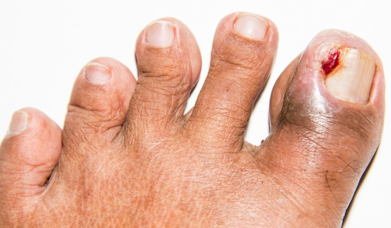 Ingrown Toe Nails – Nevada Foot Institute