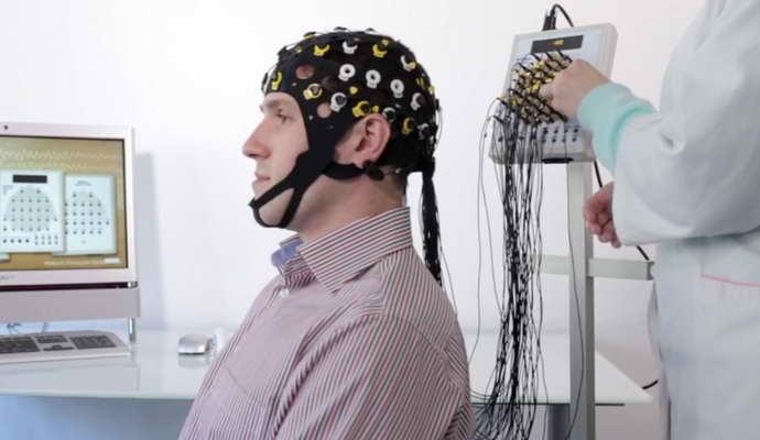 Ирритативные изменения коры головного мозга